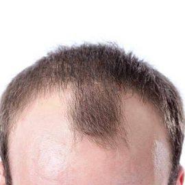 Залысины на голове