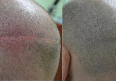 Можно ли восстановить волосяной покров на месте шрама?
