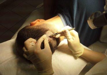 Как осуществляется пересадка волос?