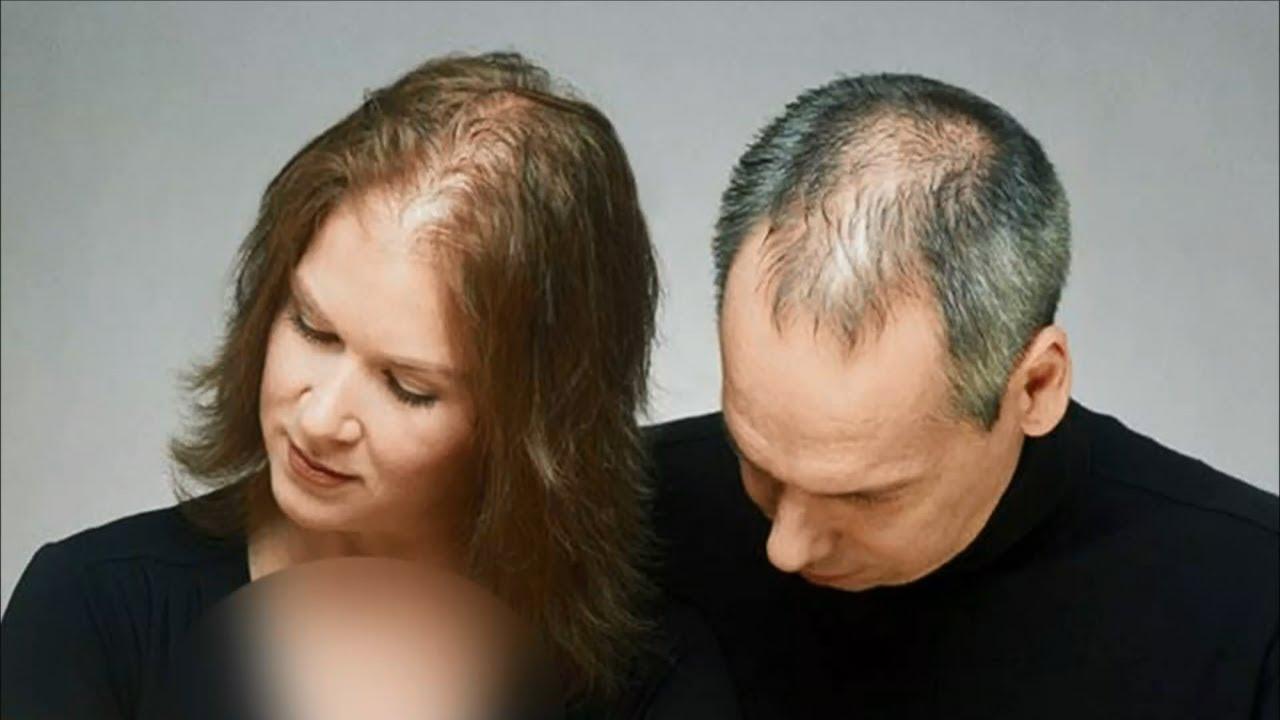 Выпадение волос - заболевание или норма?