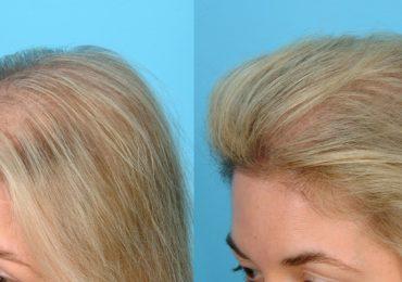 Тонкие и редкие волосы - что делать?